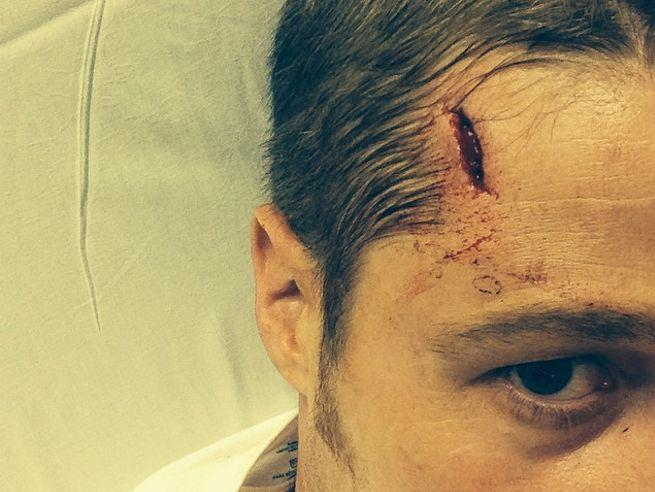 Nasty head wound - forehead gash above eyebrow.  His, right hand side of head.
